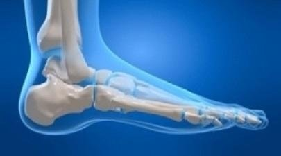 Chirurgia mininvasiva del piede