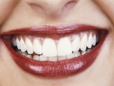 sbiancamento dentale, denti bianchi, dentista