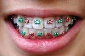 apparecchi odontoiatrici