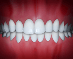 Dental midlines that do not match is a common problem that can be fixed at Regan Orthodontics in Evergreen, Colorado