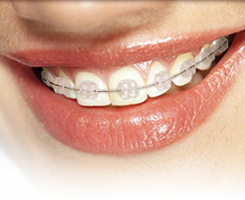 Ceramic Braces at Regan Orthodontics in Evergreen, Colorado