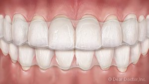 Clear Aligners for Teens at Regan Orthodontics in Evergreen, Colorado