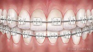 Clear Braces at Regan Orthodontics in Evergreen, Colorado