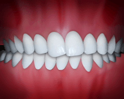A crossbite is a common problem that can be fixed at Regan Orthodontics in Evergreen, Colorado
