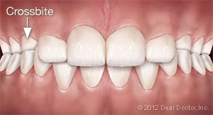 Fixing a crossbite at Regan Orthodontics in Evergreen, Colorado