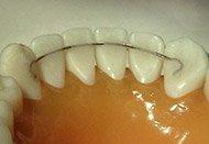 Fixed Retainers at Regan Orthodontics in Evergreen, Colorado