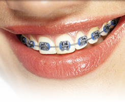 Metal Braces at Regan Orthodontics in Evergreen, Colorado