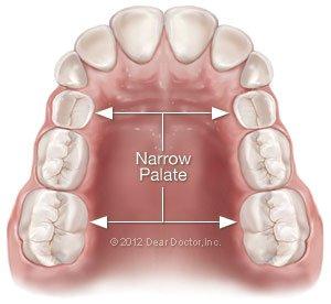 Fixing a narrow palate at Regan Orthodontics in Evergreen, Colorado