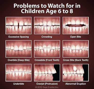 Orthodontic problems to watch for in children age 6 to 8. These can be fixed at Regan Orthodontics in Evergreen, Colorado