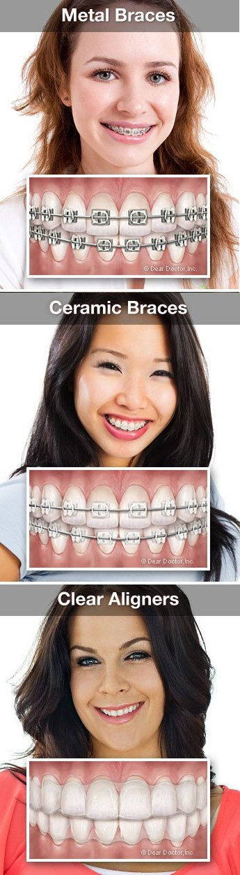 Types of braces that are used at Regan Orthodontics in Evergreen, Colorado