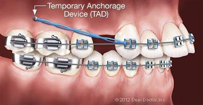 Temporary Anchorage Device at Regan Orthodontics in Evergreen, Colorado