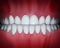An underbite is a common problem that can be fixed at Regan Orthodontics in Evergreen, Colorado