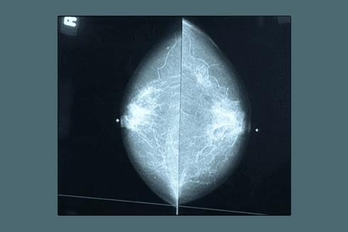 Con il supporto di avanzate metodologie, Imagine System esegue accurati esami mammografici.