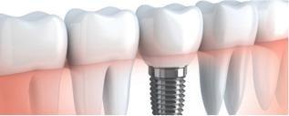 chirurgia-orale-ed-implantologia