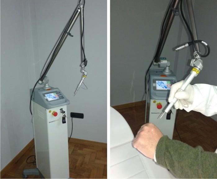 Deka Smartxide DOT - SCAN per il fotoringiovanimento