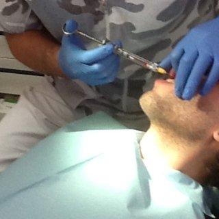 Trattementi estetici denti