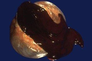 Cisti ovarica endometriosica
