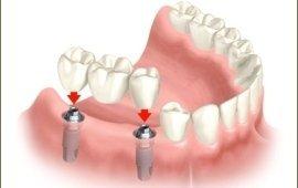 Studio odontoiatrico dentitalia