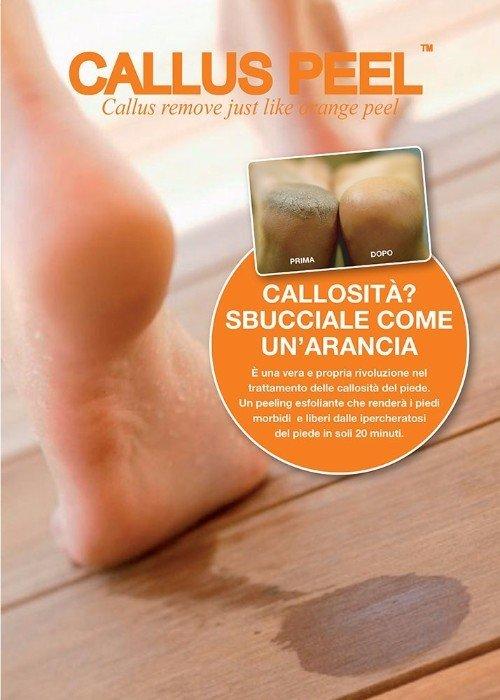 volantino del trattamento Callus peel