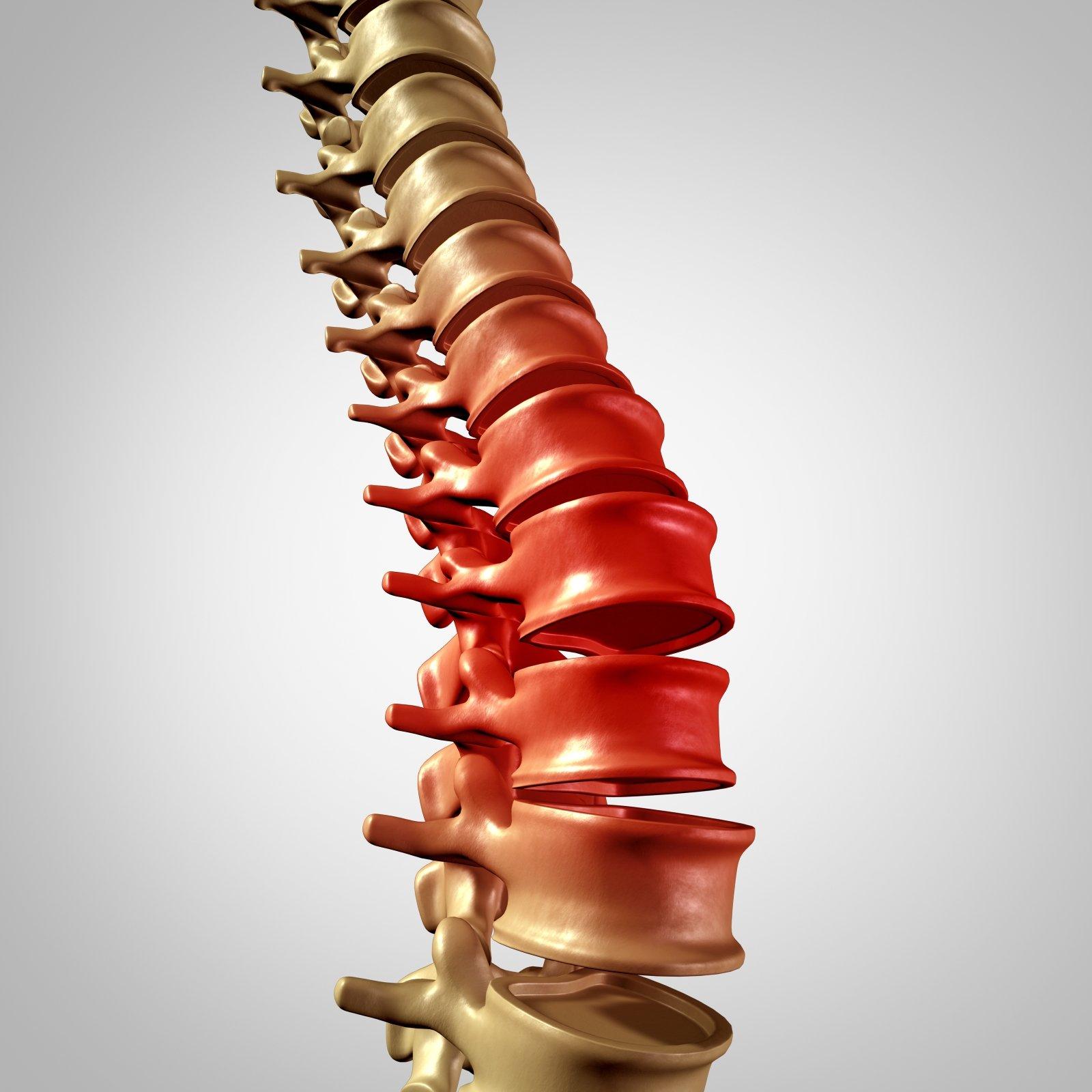 Dolore della colonna vertebrale e mal di schiena e mal di schiena umana con scheletro tridimensionale del corpo spinale