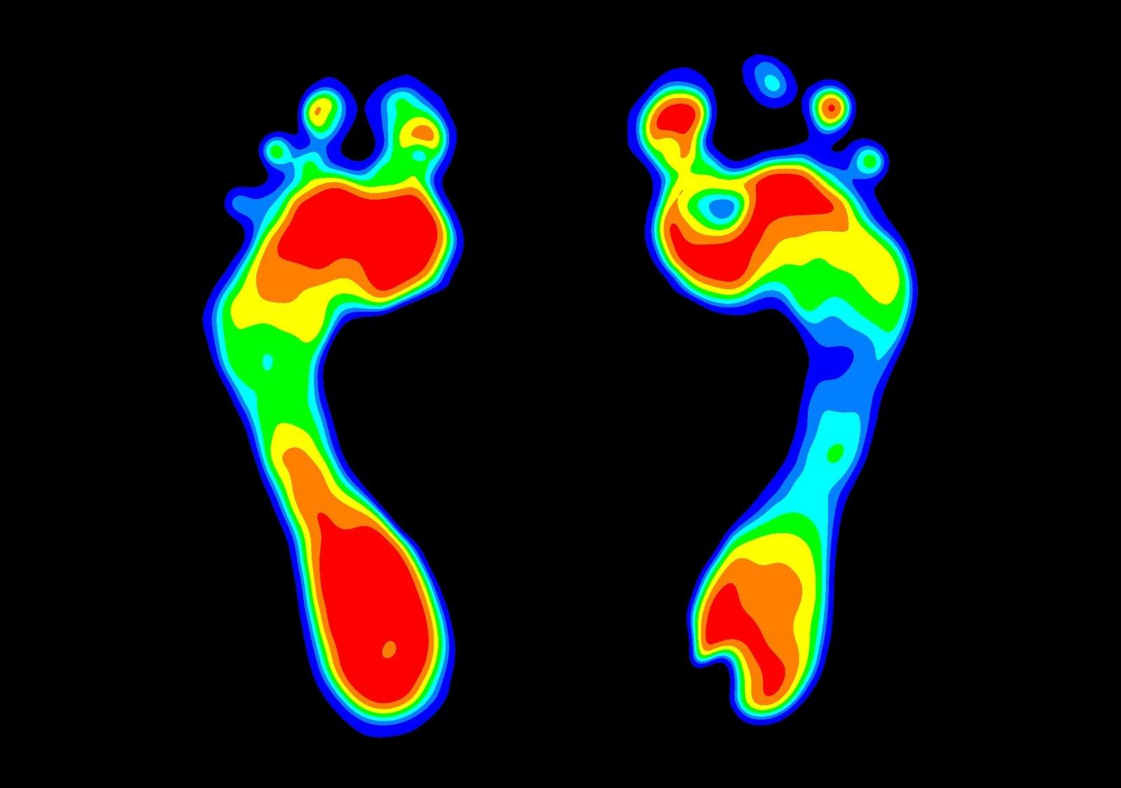 Grafico a pressione del piede, analisi della pressione del piede