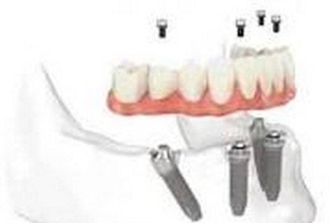 Innesti dentali