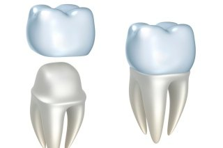 Protesi dentali