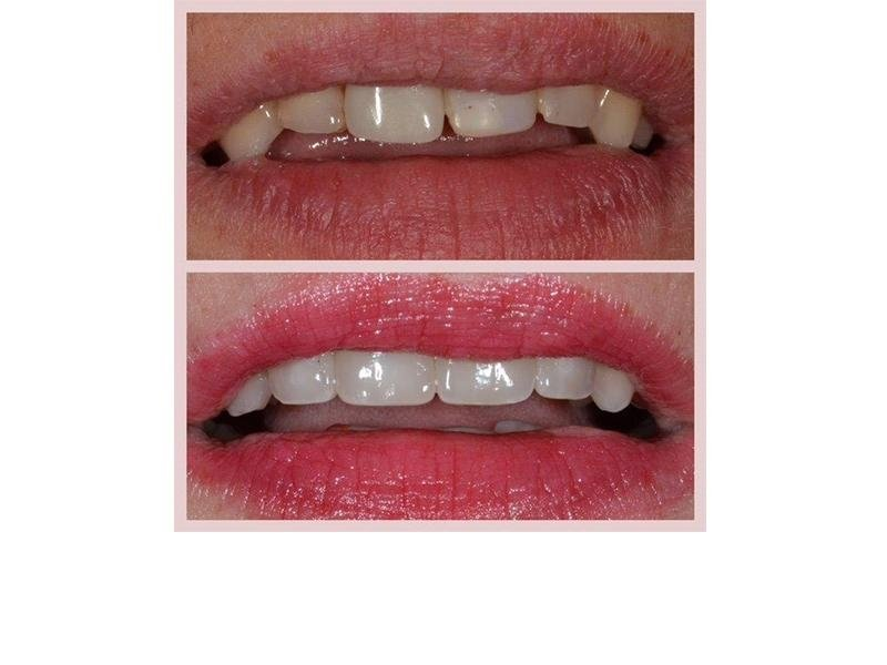 cosmetica denti