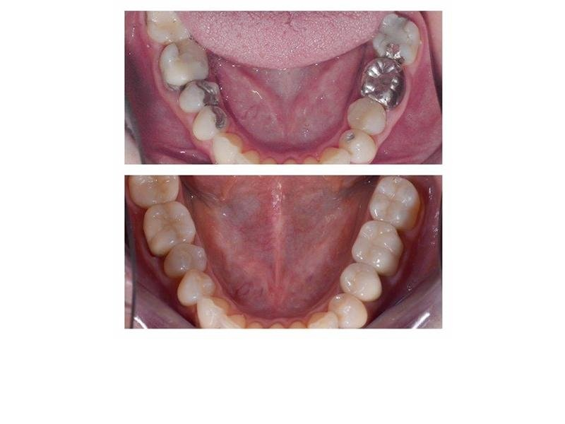 riabilitazione dentale