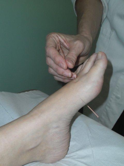 agopuntura ferrara