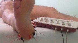 elettroagopuntura