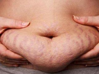 diete contro l'obesità