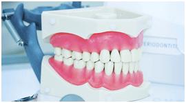 attacchi per protesi dentali