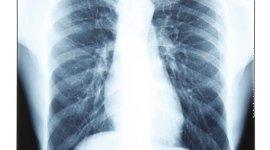 tumori polmonari