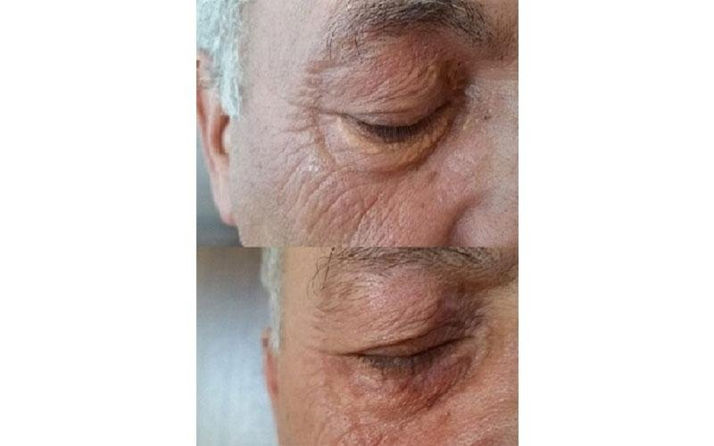 prima e dopo trattamento laser