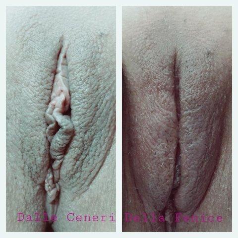 Riempimento della regione genitale femminile con acido ialuronico di una donna di 60 anni con notevole riduzione del volume delle grandi labbra con sintomi di secchezza vaginale.