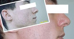 intervento acne