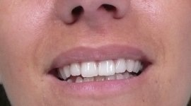 zirconio denti