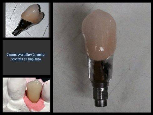 Corona Metallo/Ceramica Avvitata su impianto