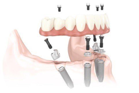 All-on-4® Dental Implant Supported Fixed Bridge in San Antonio TX