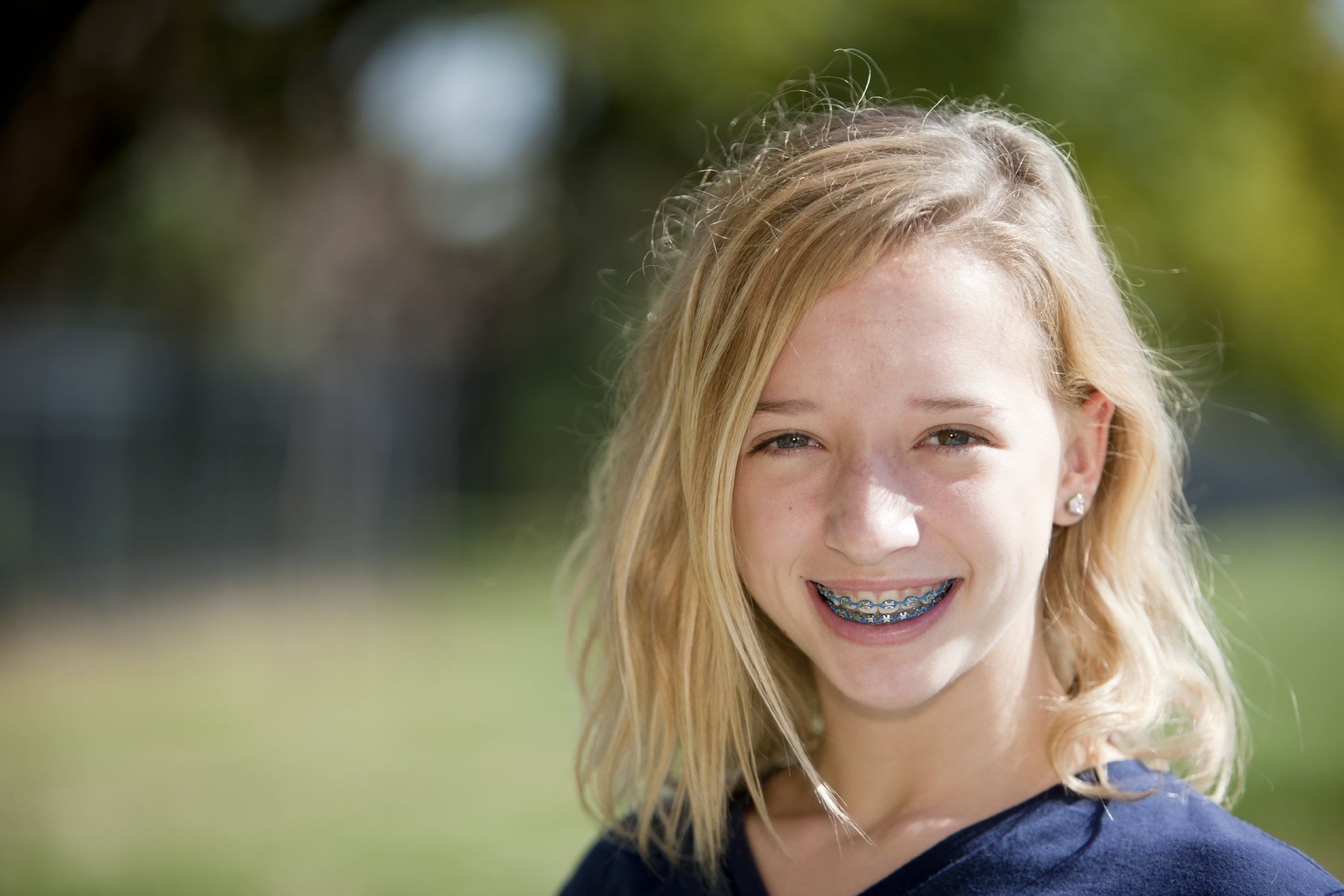 Orthodontic Braces in San Antonio TX
