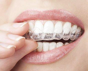 Orthodontic Braces San Antonio TX