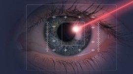 visite oculistiche, visite oftalmologiche, chirurgia oculare
