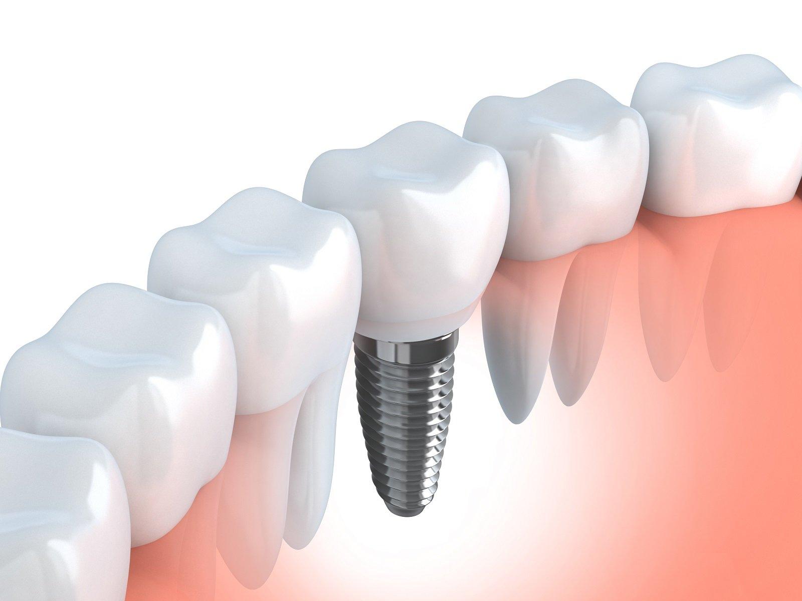Ricostruzione grafica di protesi dentale