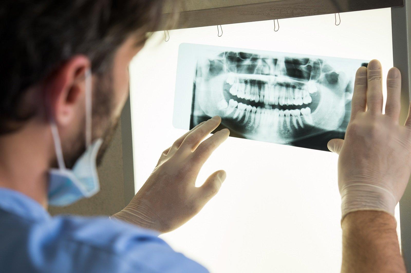 Dentista esamina radiografia dentale