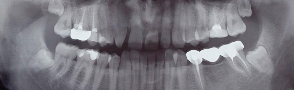 ortopantomografia dotto Pilia
