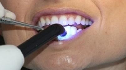 Impianti dentali fissi