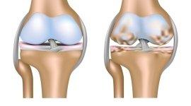 chirurgia antroscopica del ginocchio, legamenti, traumatologia