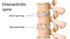 osteopatia, disco ridotto, patologie della spalla