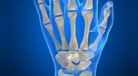 polso, falange, chirurgia artroscopica